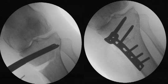 a wedge of bone graft is placed in the void and then the osteotomy site stabilized with a plate and screws